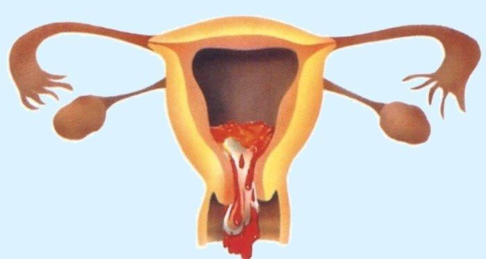 Неполный аборт после медикаментозного аборта pharm-expert.info