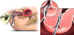 Хирургический аборт. Выскабливание матки - pharm-expert.info